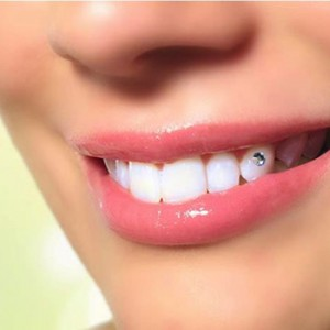 Gắn kim cương lên răng