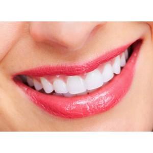 Quy trình tẩy trắng răng tại phòng